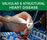 Structural Heart/Valve Disease